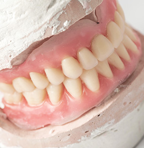 snap on dentures cancun